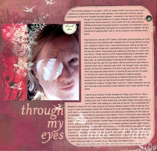 Sm Through My Eyes Cataract Surgery